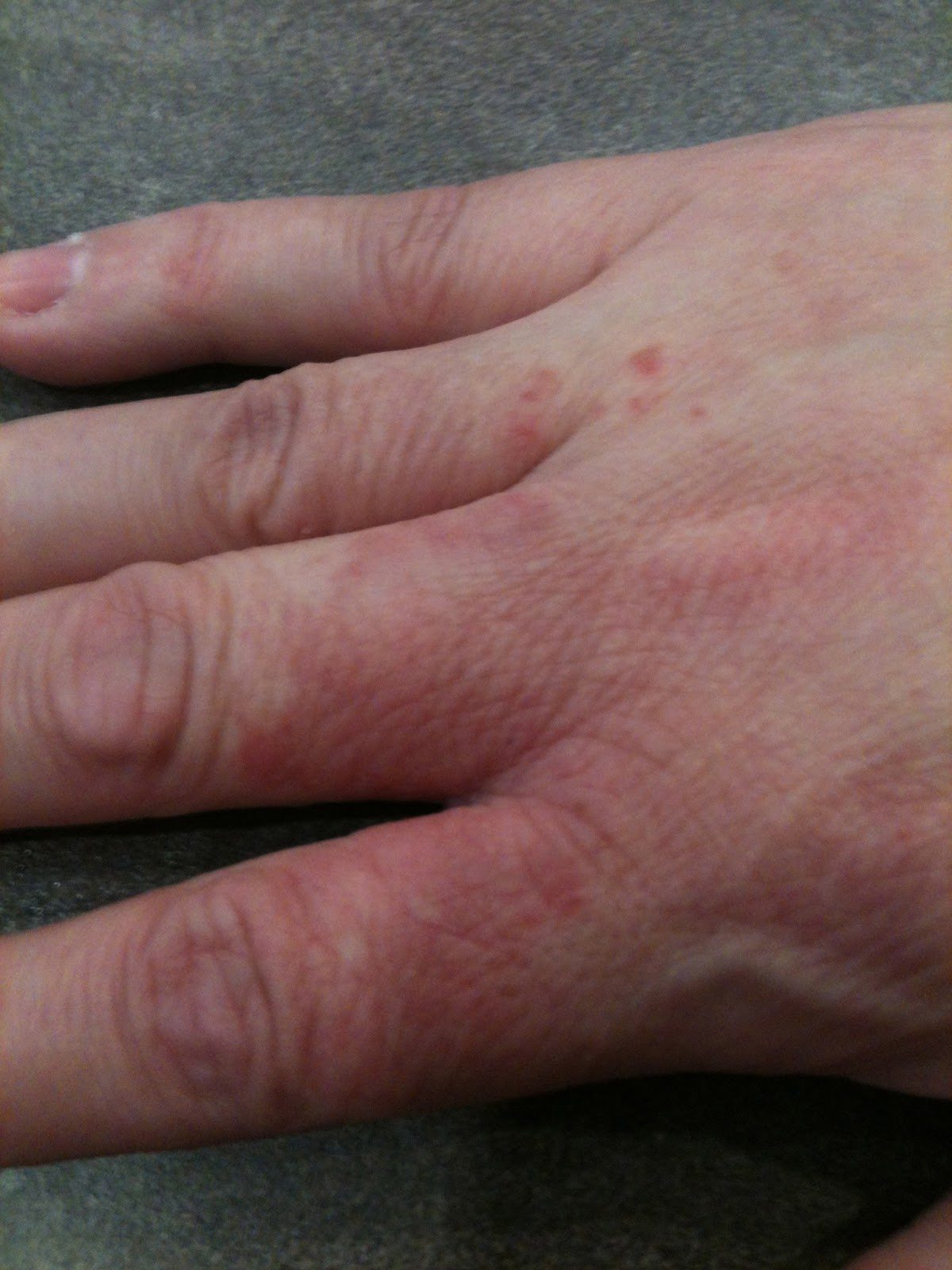steroid free creams for eczema