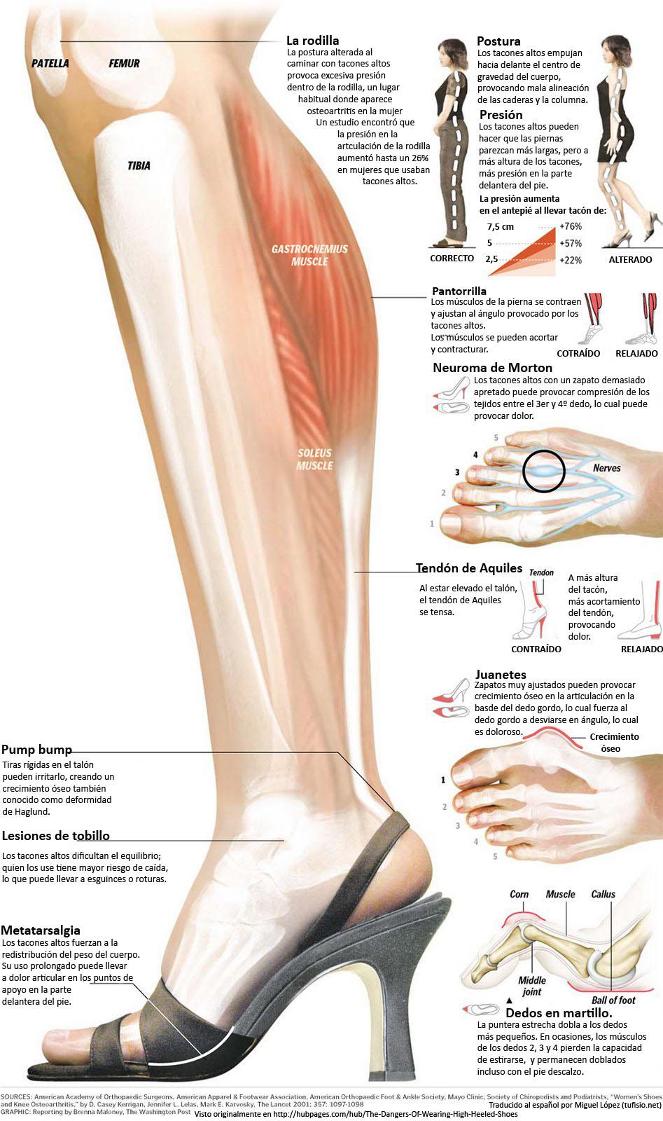 Fisioterapia: ¿Es Perjudicial usar tacones muy altos?