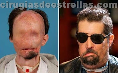dallas wiens antes y despues