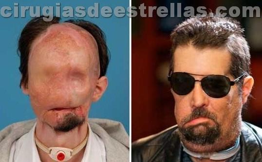 Dallas Wiens antes y después del transplante de rostro
