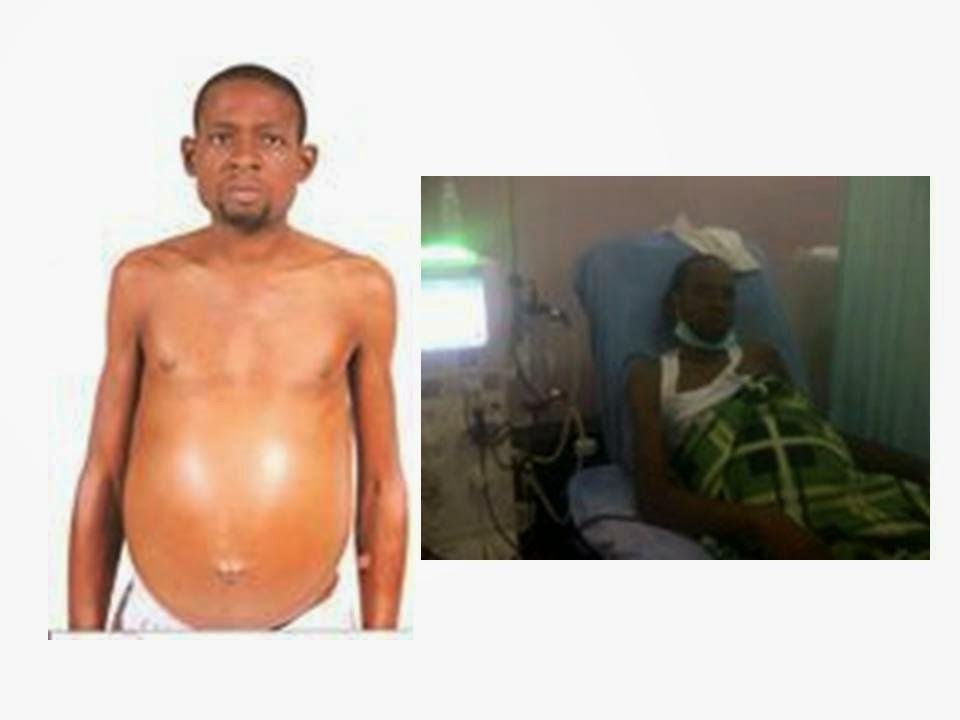 nigerian man pregnant