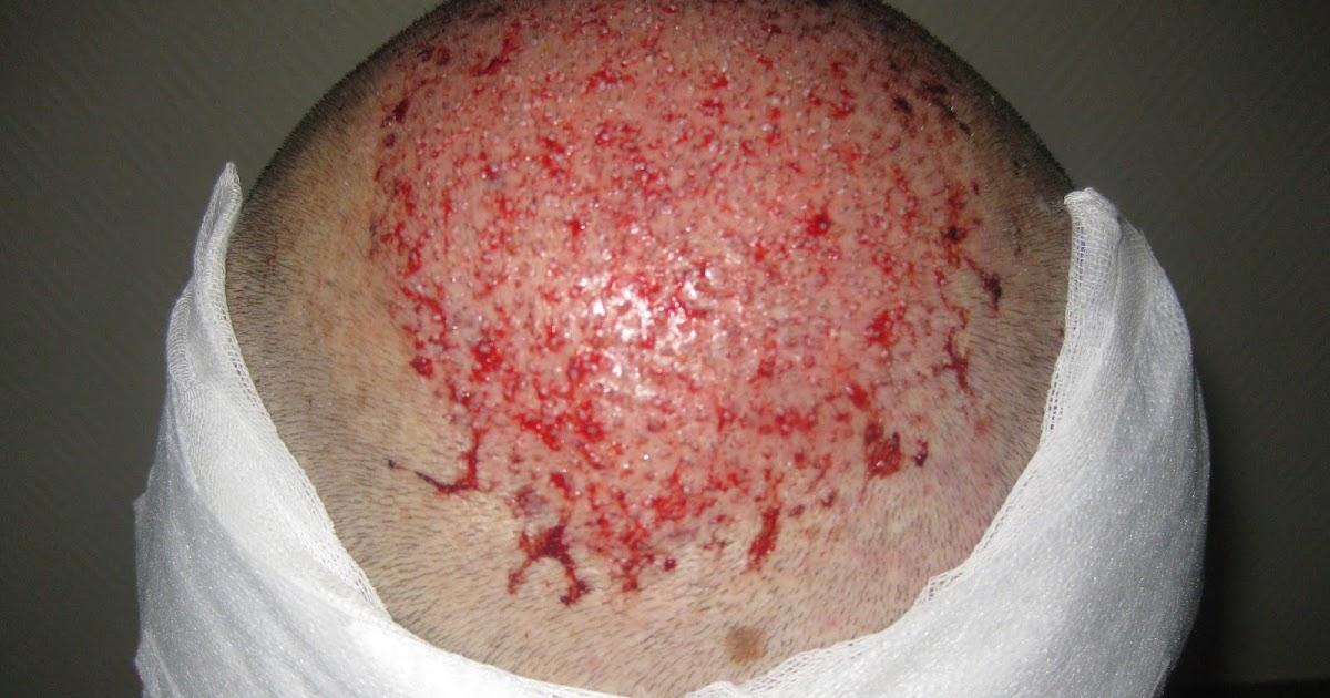 effet secondaire greffe de cheveux   médical santé