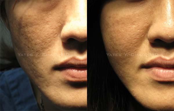 脂肪移植改善臉上青春痘疤