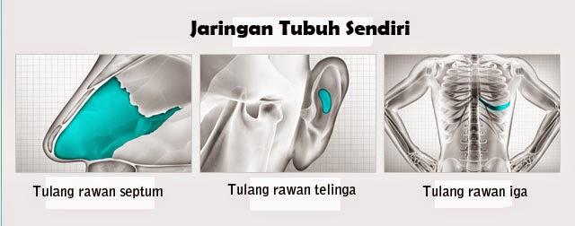 jaringan sendiri untuk operasi hidung di bedah plastik wonjin-1