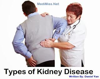 Types of Kidney Disease