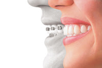 www.imjustsayindamn.blogspot.com, Invisalign and Braces Comparision