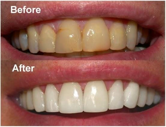 طريقة رائعة لتنظيف اسنانك بالملح