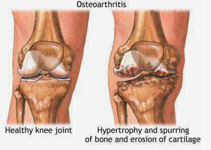 pengapuran sendi, osteoarthritis, sakit sendi, nyeri sendi