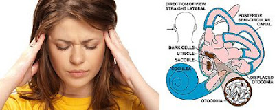 Positional vertigo: Exercises For treatment at home