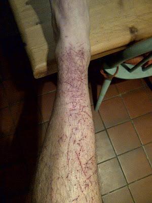 Richard Crewe Bramble wounds