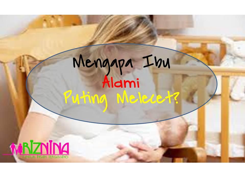 4 Sebab Ibu Menyusu Alami Puting Melecet
