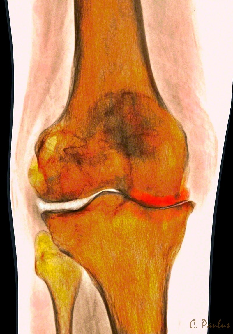 AP Color Knee X-Ray showing severe DJD