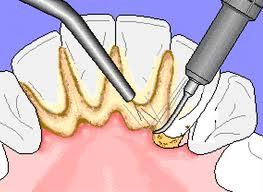 Tips Membersihkan Karang Gigi secara Alami