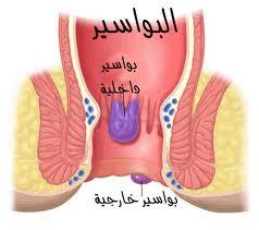 وصفات علاج البواسير