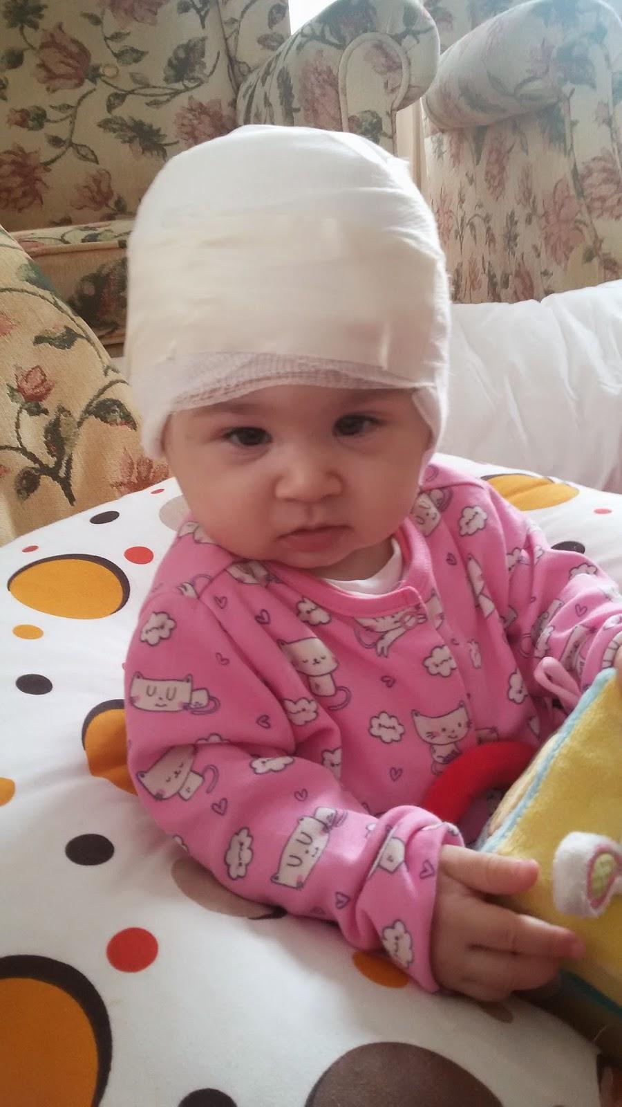 Bebeklerde bıngıldağın geç kapanmasının nedenleri