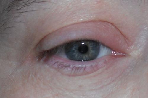 Las ojeras negras la causa a los hombres el tratamiento
