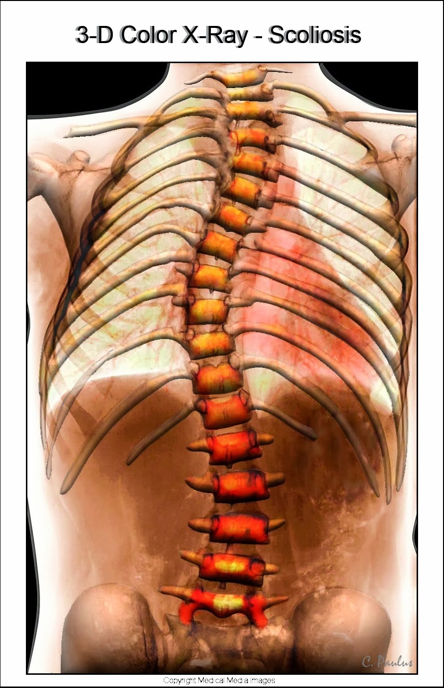 3-D Color Scoliosis X-Ray