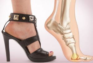 The damage that high heels cause to feet