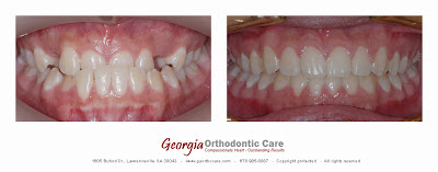 Orthodontic Treatment of Dental Crossbite, Lawrenceville GA 30043
