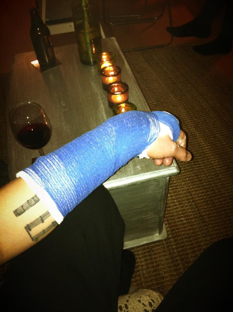 Broken, Fracture, Cast, Finland, Snowboard, Accident, Injury