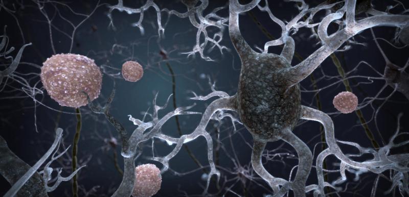 Blocking Specific Protein Found to Allow Brain's Own Immune System To Prevent Neurodegeneration