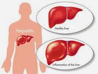 Obat hepatitis b
