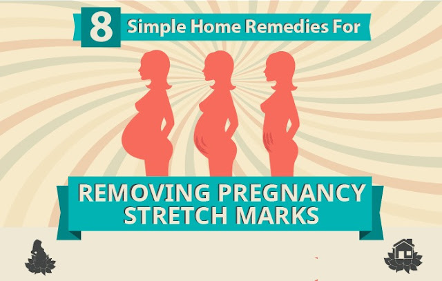 10 Simple Home Remedies For Removing Pregnancy Stretch Marks