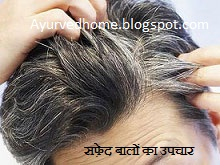 सफेद बालों का इलाज