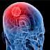 Know Better the Brain Cancer