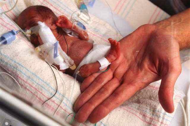 Merawat Bayi Prematur