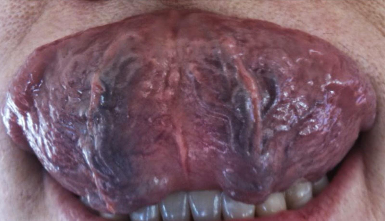 varicose veins in throat