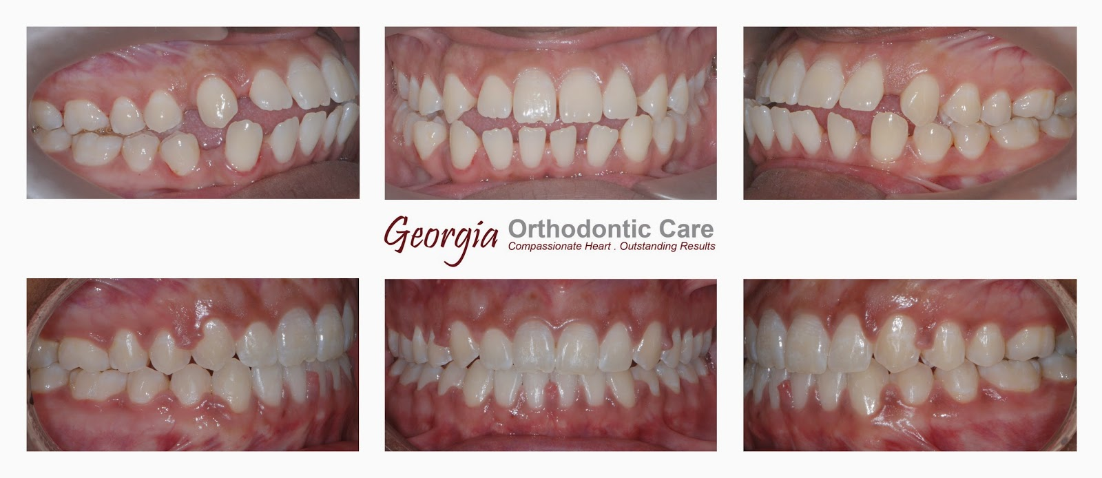 Teeth spaces, spaced-teeth, space consolidation, under bite treatment, class III treatment, Lawrenceville orthodontist, Norcross orthodontist, Gwinnett orthodontist, orthodontists, orthodontics, under bite, over bite, Georgia Orthodontic Care, Dr Nguyen, Cosmetic, Implant, Children, Family, Dentists, Clear, Braces, Invisible, Adults, Teens, Children, Clear Braces, Invisible Braces, Invisalign, Straighten, Teeth, Lawrenceville, Norcross, Buford, Hamilton Mill, Dacula, Auburn, Sugar Hill, Sugar Loaf, Doraville, Chamblee, Stone Mountain, Decatur, Collins Hill, Snellville, Suwanee, Grayson, Lilburn, Duluth, Cumming, Alpharetta, Marietta, Dekalb County, Gwinnett County, Atlanta, North Georgia, GA, Georgia, 30043, 30093