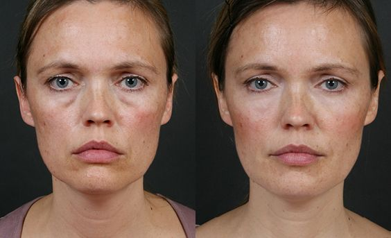 Tidy Your Eyes With Facial Rejuvenation Workout Remedies To Fade Out Eye Bags