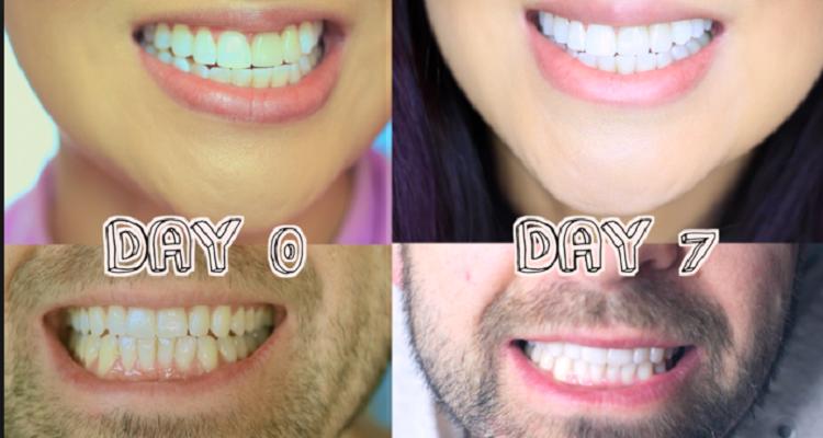4 خطوات لتتمكن من إزالة جير الأسنان وجعل بياضها ناصع