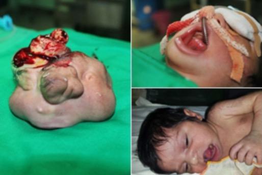 Janin kembar dalam mulut seorang bayi baru lahir