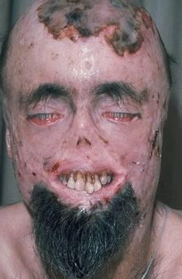 Lion Face Syndrome
