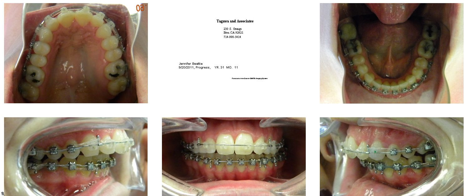 Famous Braces Wired Shut Photos - Electrical Diagram Ideas - itseo.info