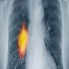 Ingestão de vitaminas B e metionina no risco de câncer de pulmão