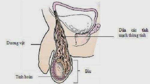 Giãn tĩnh mạch dây dịch hoàn gây gian chất lượng tinh dịch