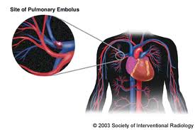 Pulmonary treatments