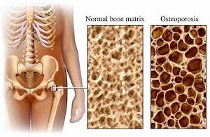 7 Cara Mudah Cegah Osteoporosis Sejak Dini