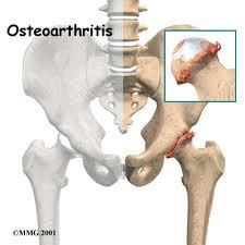 Osteoartrose, Osteoartrite