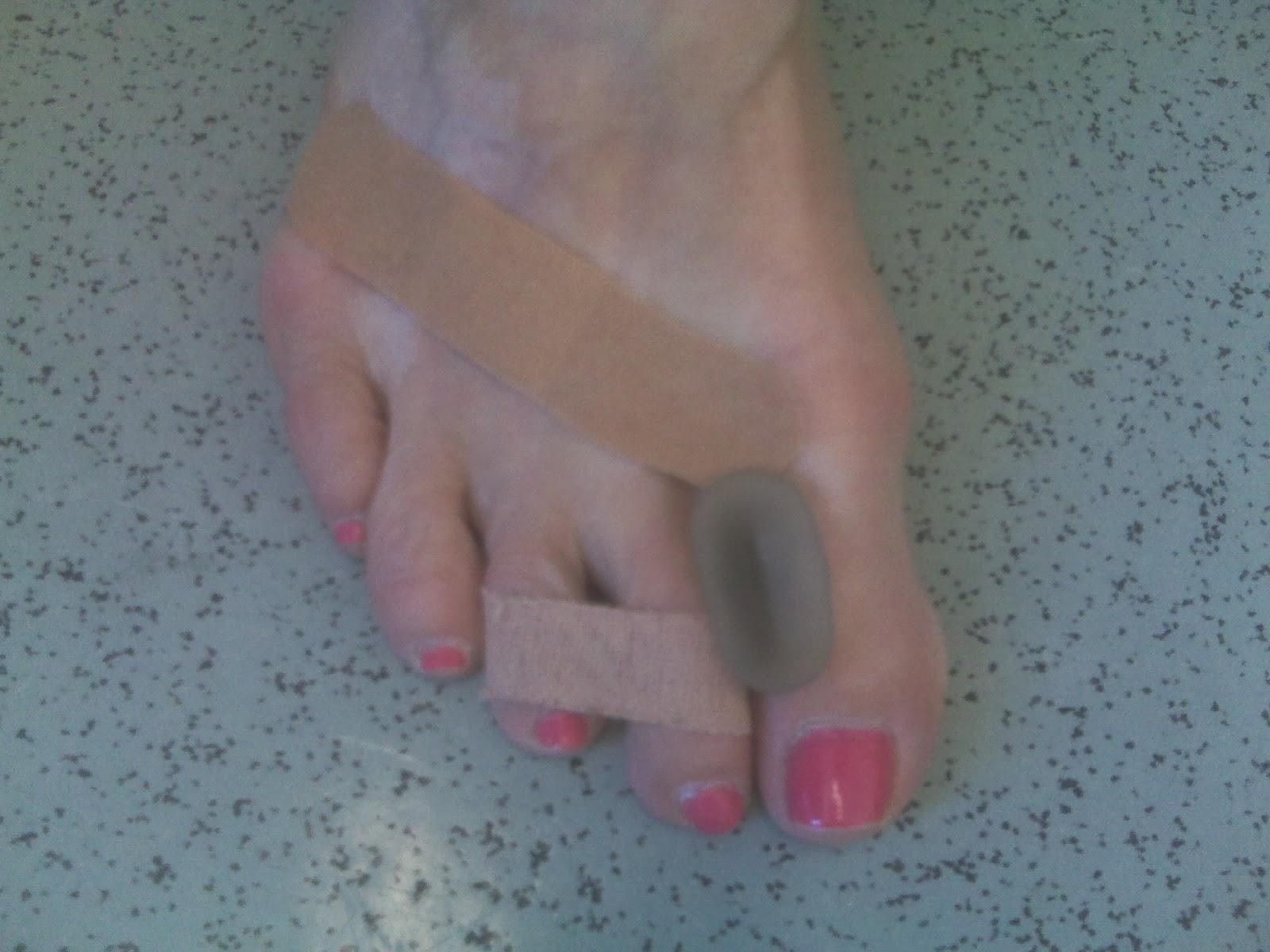 Bunion Toe Separator For Sandals Qoo10 Bunion Corrector