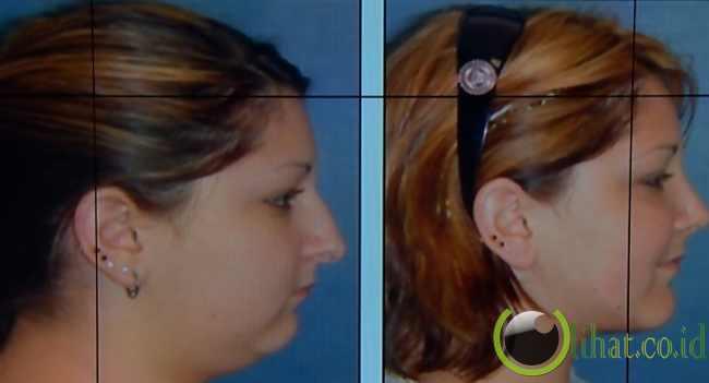 Operasi Dagu (chinplant)