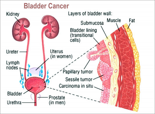 bladder cancer causes, signs and symptoms | health and medical, Human Body
