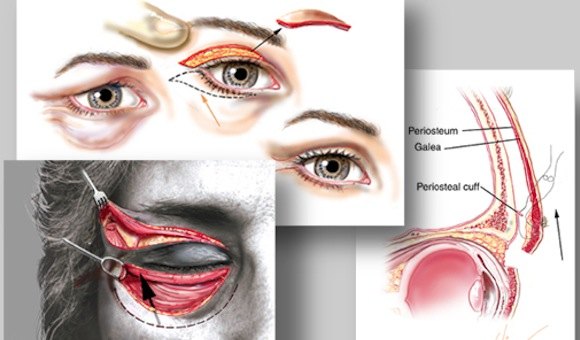 Blepharoplasty Eye scar treatment Oculoplastic Surgery India Kolkata. Best results by Dr Srinjoy Saha