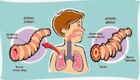 Pengobatan Penyakit Asma Secara Tradisional