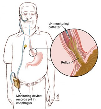 Normal antroduodenal manometry study