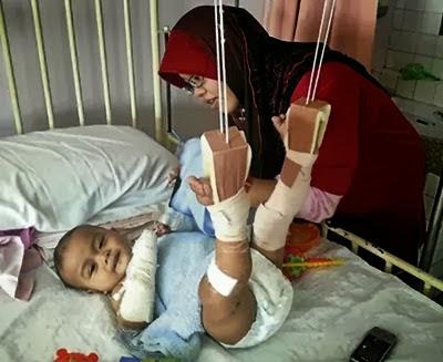 Bayi Qutbi Ajwad 11 Bulan Retak Kaki Akibat Kemalangan