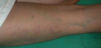 El vendaje del pie después de flebektomii